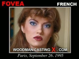 Fovea casting