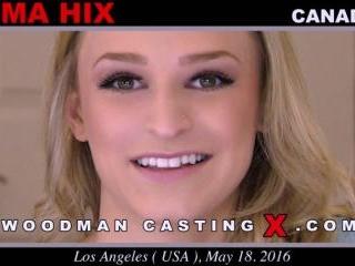 Emma Hix casting